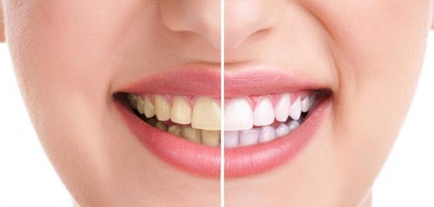 كيف تجعلين أسنانك ناصعة البياض بمكونات بسيطه