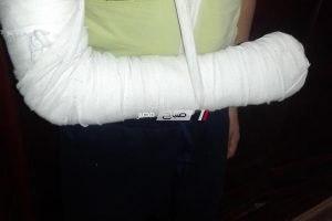 مدرس يكسر ذراع طالب باستخدام عصا خشبية بدمياط و وكيل التعليم يحيل الواقعة للتحقيق