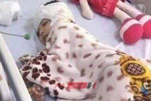 نقل أماني شقيقة الطفلة جنة إلى المستشفى بعد اكتشاف تعذيبها بنفس الطريقة