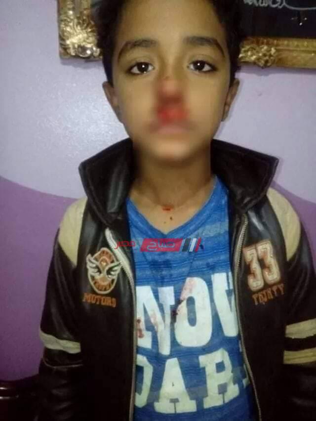 معلم يعتدي على طفل من ذوي الاحتياجات الخاصة في مدرسة بمحافظة الغربية